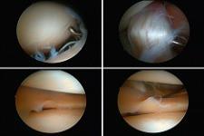 Artroskopia stawu podskokowego