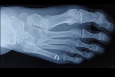 Deformacje stóp typu bunionette – korekcje