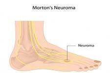 Operacje innych neuralgii w obrębie stopy