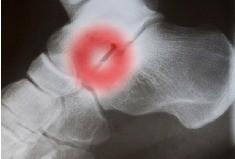 Usztywnienia w zakresie stopy (artrodeza stopy)