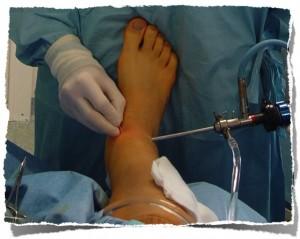 artroskopia stawu skokowego