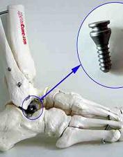 implant podskokowy
