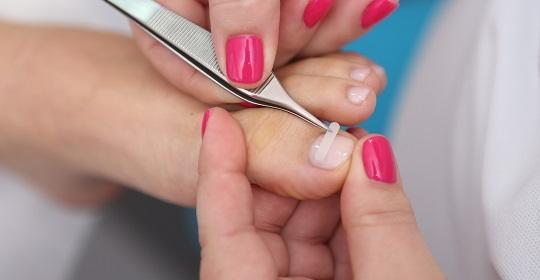 Klamry na wrastające paznokcie – co to takiego?