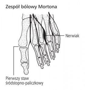 nerwiak Mortona