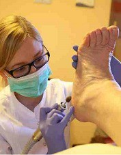 odciski na stopach leczenie