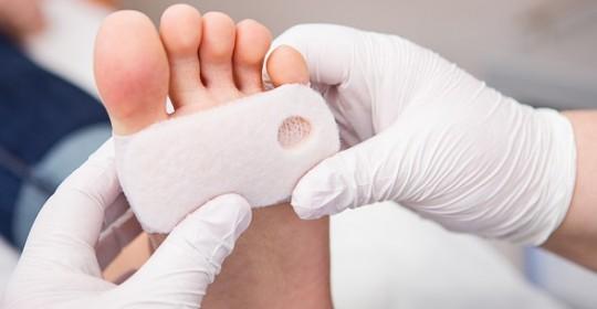 Odciski palców – leczenie i usuwanie