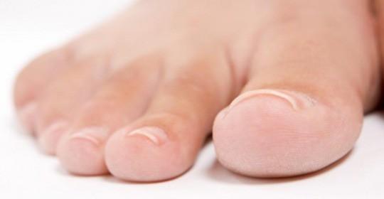 Dolegliwości urazowe stopy – paluch sztywny i złamanie pięty