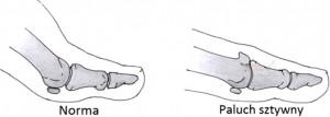 Paluch sztywny - leczenie, korekcja, operacja, usuwanie