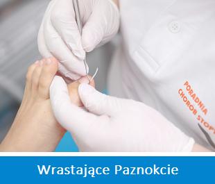 wrastające paznokcie - ortopeda warszawa haluksy specjalizacje