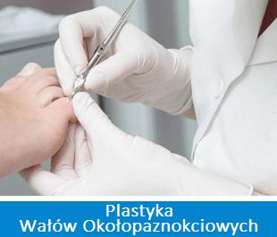 plastyka wałów Okołopaznokciowych - ortopeda warszawa haluksy specjalizacje