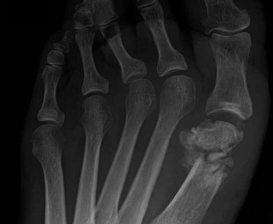 41 złamanie kości śródstopia 3