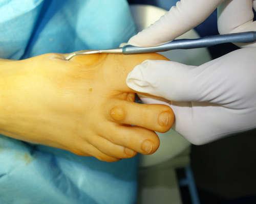 haluksy leczenie miniinwazyjne 2