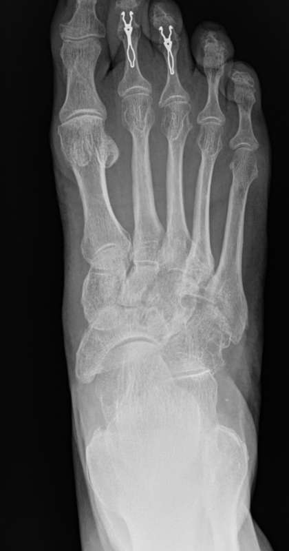 f. palce młotkowate - korekcje 1