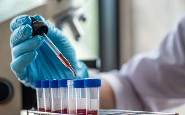 scientist or doctor dropping a blood into blood test tube in rack , research  concept