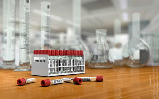 3D render, illustration.Science concept, Chemical laboratory glassware, glass test tubes for blood